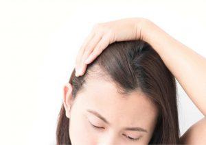 סובלים מנשירת שיער? במגזין Balding יש כמה עצות שיכולות לעזור